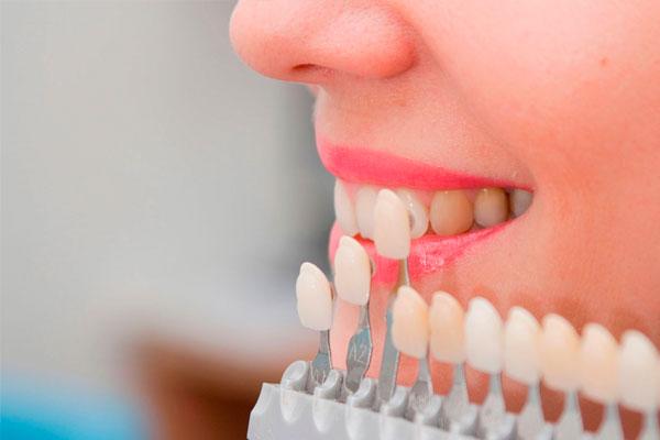 Carilles dentals (composite)
