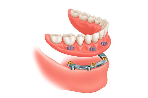 Pròtesi implantosoportats amb barra