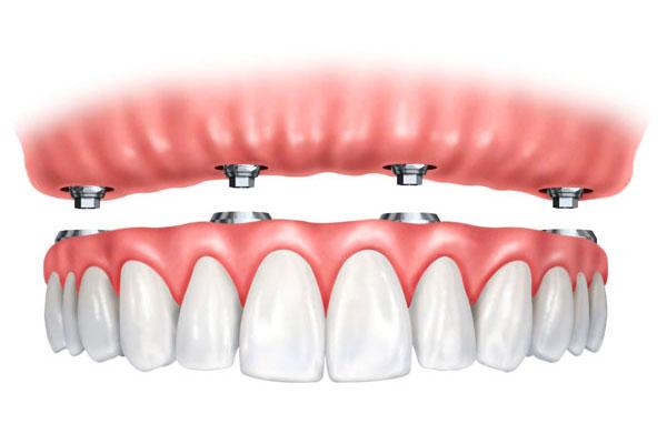 Pròtesis implantosoportades